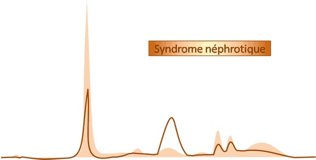 electrophorèse syndrome néphrotique